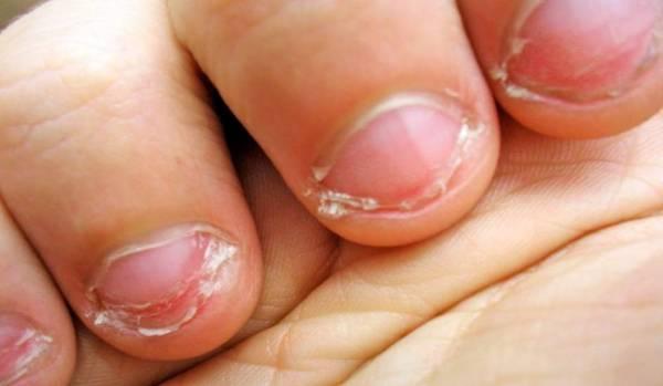 Советы и рекомендации родителям, как отучить ребенка грызть ногти, For All Women