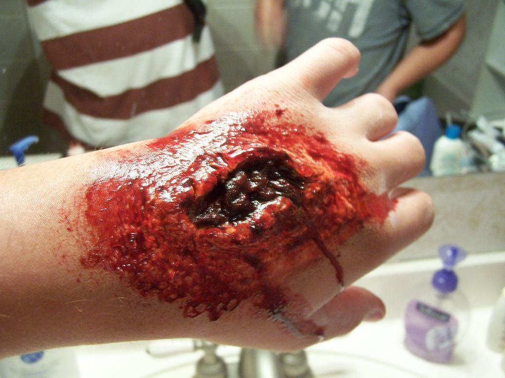 Снились свои руки в ранах и крови