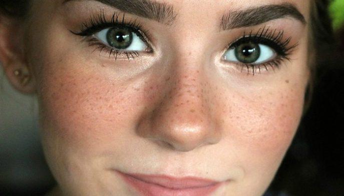 Уход за кожей лица средство от веснушек thumbnail