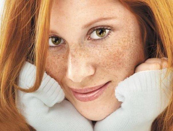 Уход за кожей лица средство от веснушек